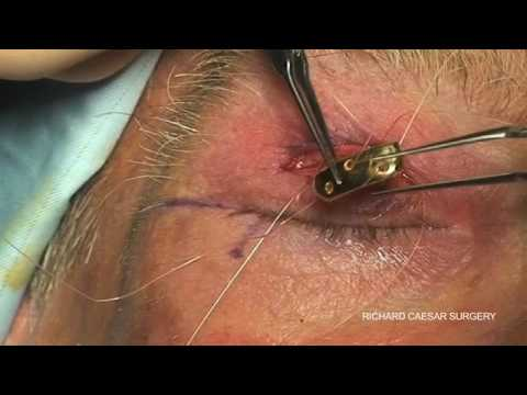 how to stop upper eyelid spasms