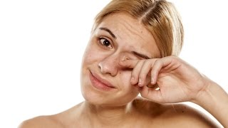 Floaters In The Eye, What Causes Floaters, Causes Of Eye Floaters, How To Cure Eye Floaters
