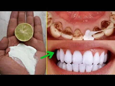 Ada berbagai cara untuk menghilangkannya, mulai dari perawatan muka secara teratur hingga datang ke salon kecantikan untuk....