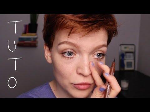 Les taches rouges de pigment sur le cou que cela et de quoi