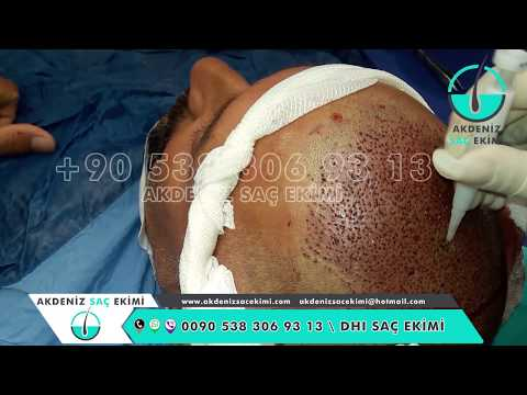 DHI Hair Transplant Turkey 01 - Saç Ekimi 01 - DHI Implanter Pen Technique - زراعة الشعر في تركيا