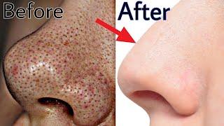 1 बार में BlackHeads को जड़ से ख़त्म कर के चेहरे को मुलायम और बेदाग़ बना देगा Get Spotless Clear Skin