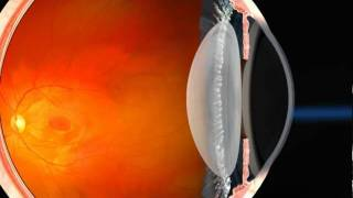 Wavefront Optimized LASIK Explained