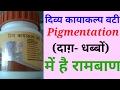 Perfect Treatment of Skin Pigmentation(Dark spots, black patches). Divya Kayakalp Full Review