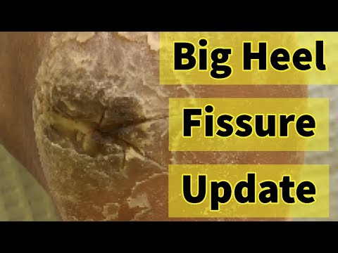 Big Heel Fissure Update: The Heel Has Finally Healed!