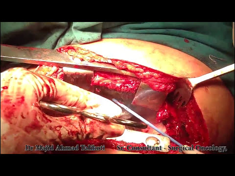 Lung Cancer - How to do Thoracotomy Surgery for Lung Cancer