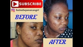 How to get rid of acne spots and dark marks fast!- Microdermabrasion treatment