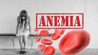 Bahaya Anemia Defisiensi Zat Besi Bagi Anak.