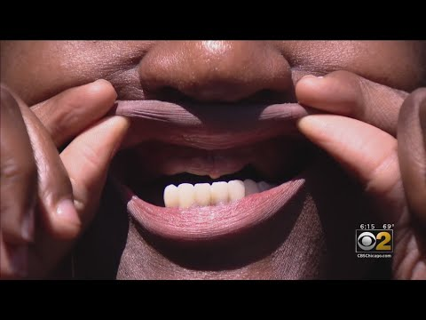 Woman Says Lifetime Show Promised Her The Perfect Smile, But She Was Left Nearly Toothless