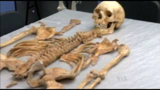 A Medieval Skeleton Holds Clues to Leprosy