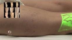 videoclipuri varicose girudoterapie