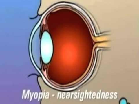 ตาและการมองเห็น