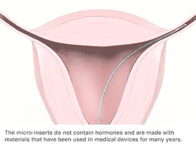 Here's what you should know about Essure, the controversial
