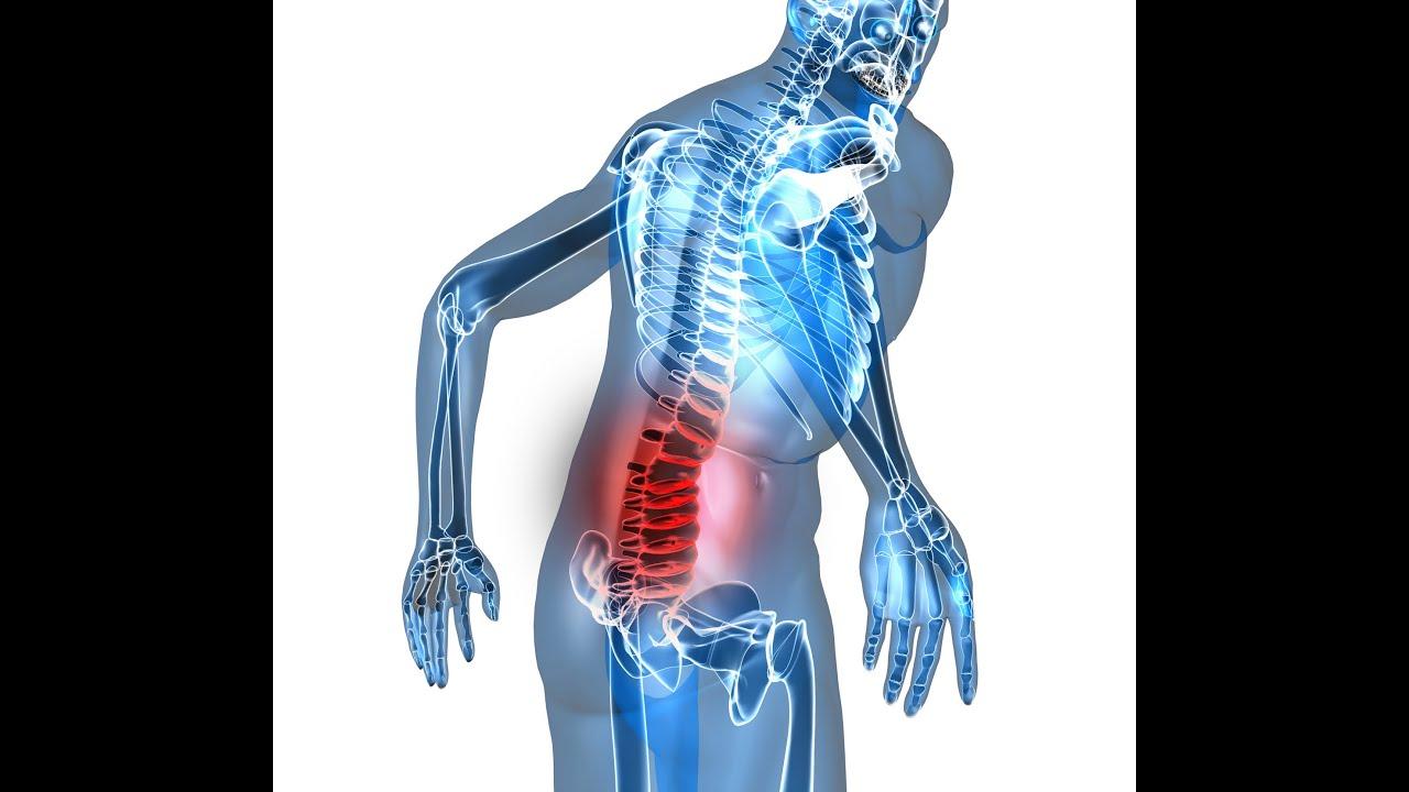 Los modos del tratamiento protruzii de los discos de la columna vertebral