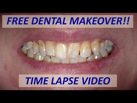 Free dental makeover time lapse video - YouTube
