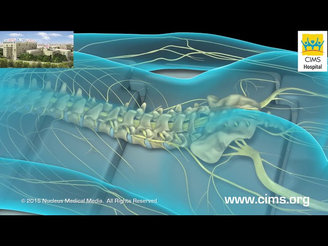 Lumbar Laminectomy (Gujarati) - CIMS Hospital
