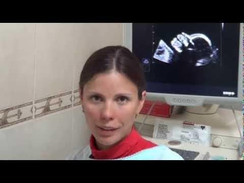 Узи при беременности, часть 3