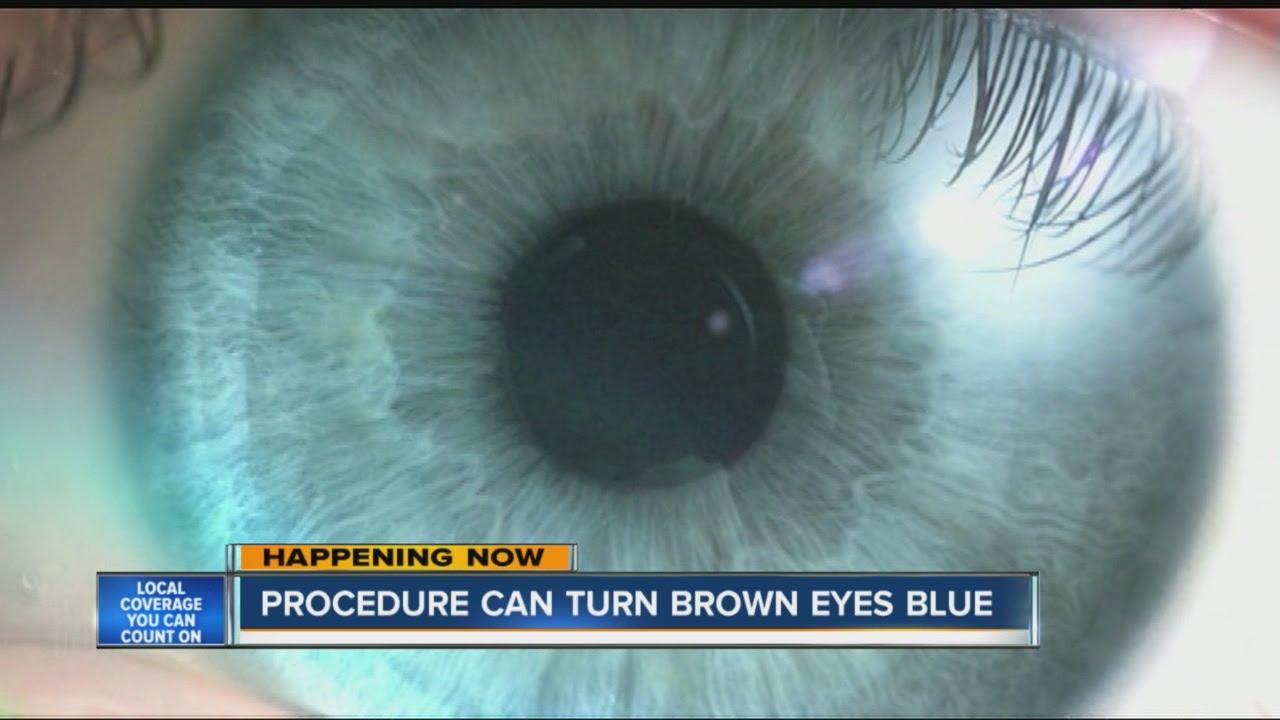 New Laser Surgery Lets You Change Eye Color from Brown to