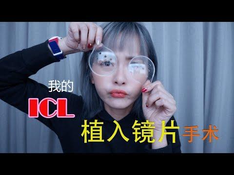 ICL 植入镜片 ♡ 我的矯視術前術中術後大解剖 Q&A  AKI CHAN 