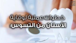 خطوات عملية لوقاية الاسنان من التسوس - صحتك حياتك
