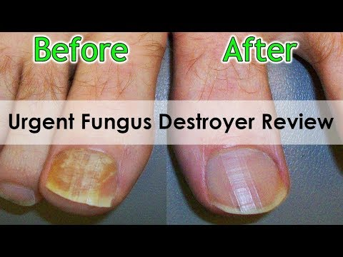 Urgent Fungus Destroyer Review-This Ingredients Works?