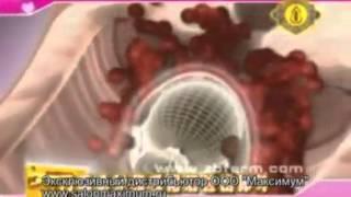 видео лечебные тампоны