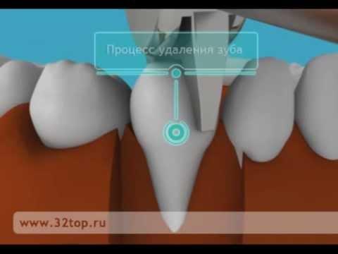 Альвеолит после удаления зуба и способы лечения