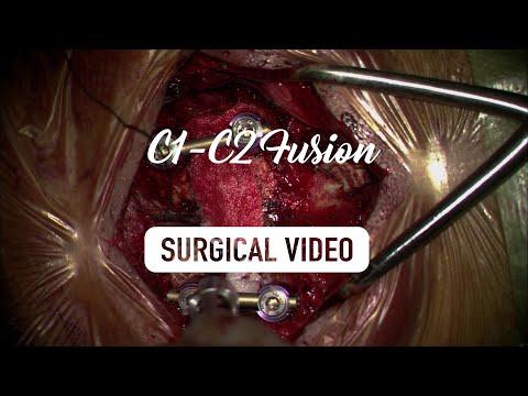 Posterior Atlantoaxial Fusion - Surgical Technique (HD)