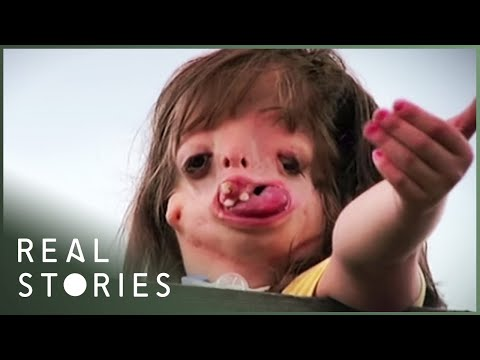 Juliana: The Girl With The New Face (Medical Documentary) | Real Stories