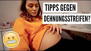 TIPPS GEGEN DEHNUNGSSTREIFEN? | 08.01.2018 | ✫ANKAT✫