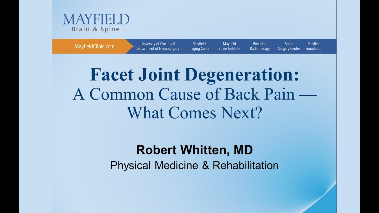 Facet Joint Syndrome, Facet arthropathy Mayfield Brain