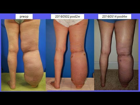 My lymphedema journey with Dr Young Ki Shim