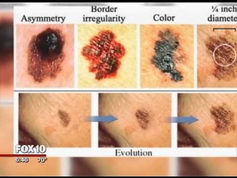 Fox 10 News Interviews Dr. Nancy Kim, Phoenix Dermatologist At Spectrum Dermatology About Melanoma.
