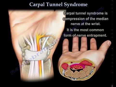 The medical description of the carpal tunnel syndrome