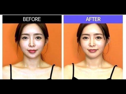 My Formula My Neck Mask 改善颈部皱纹 改善颈纹 颈膜
