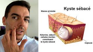 Kyste Sébacé : Mon Expérience ! Causes, Infection, Traitement, Opération...