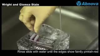 Hematology - Wright and Giemsa Stain