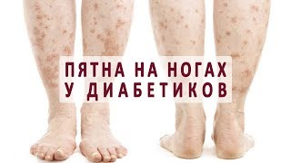 Почему появляются пятна на ногах при сахарном диабете?
