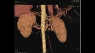 1ère mondiale : ablation d'un cancer du rein par le nombril (HCL)