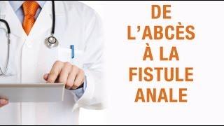 De l'abcès à la fistule anale