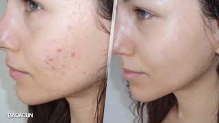 Mira cómo eliminar las marcas de acné en tu cara