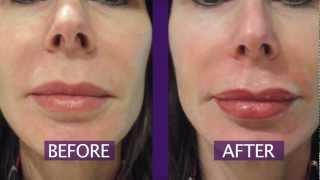 Permanent Makeup Lips - Permanent Lip Color Thumbnail