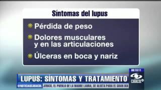 Lupus dolor muscular enfermedad del