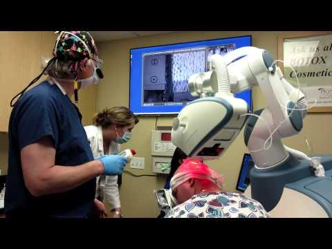 Robotic Hair transplantation in Chicago - ARTAS robot