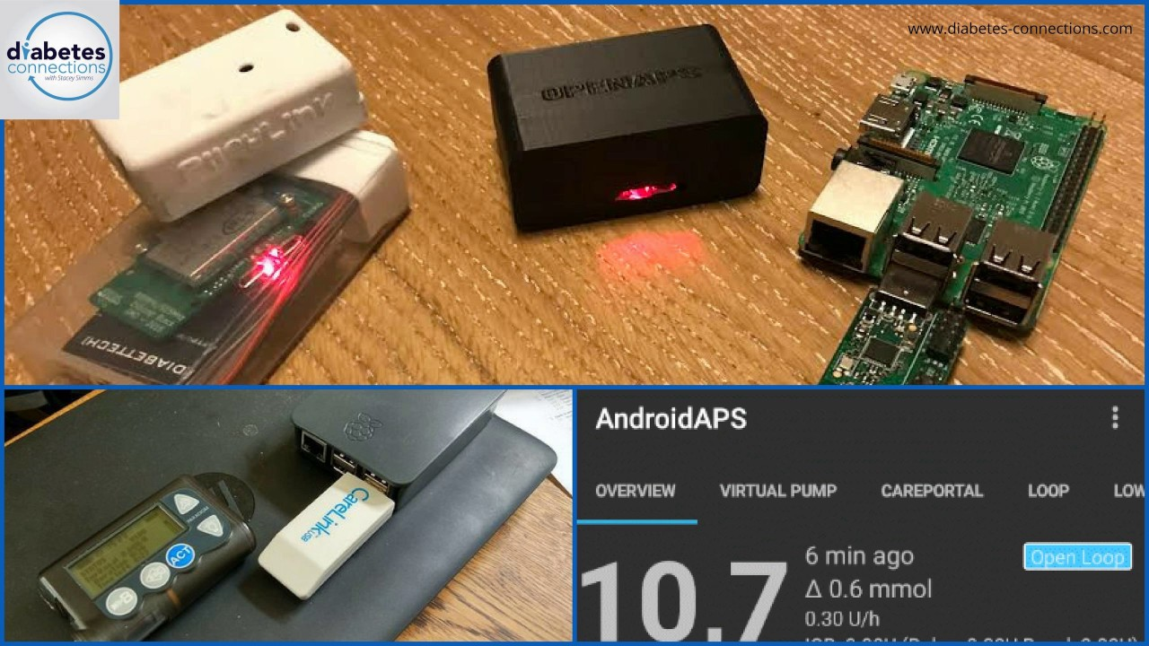 Loop, OpenAPS and Other DIY Systems for T1D