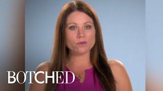 Botched | Christina's Nose Looks Like a Hockey Stick | E!