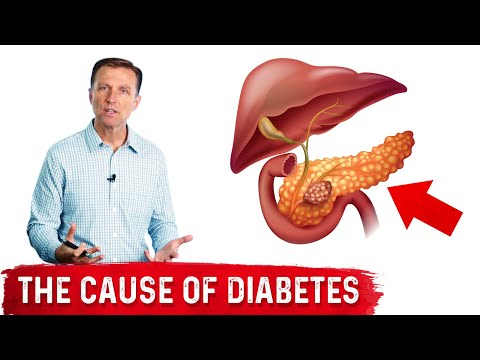 Your Fatty Pancreas Caused Your Diabetes