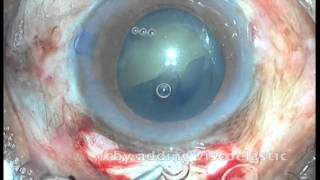 Manual Small Incision Cataract Surgery MSICS (SICS) - Dr.S.Ma (Case ID 123007)