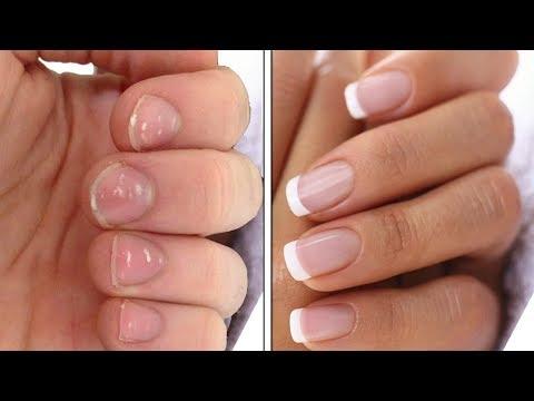 Для укрепления ногтей какие витамины пить