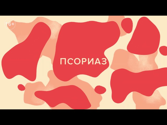 Все о псориазе: лечение, виды, профилактика